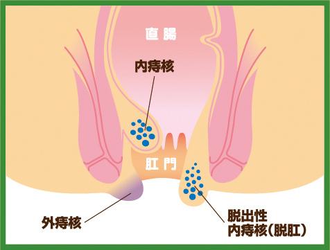 【画像】痔核のイラスト