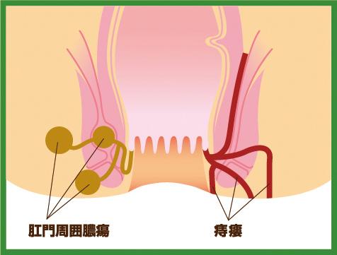 【画像】痔瘻のイラスト