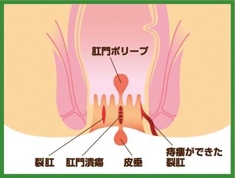 【画像】裂肛のイラスト